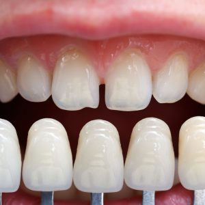 dental-veneers-costs