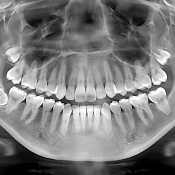 Facts About Dental X-Rays
