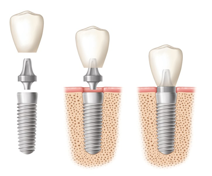 Know About Dental Implants: Overview, Types, Procedure And What To Expect