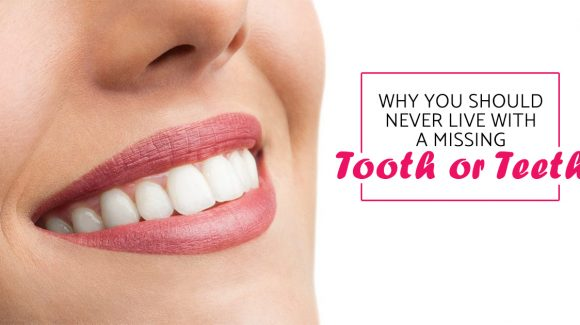 Why you should never live with a missing tooth or teeth