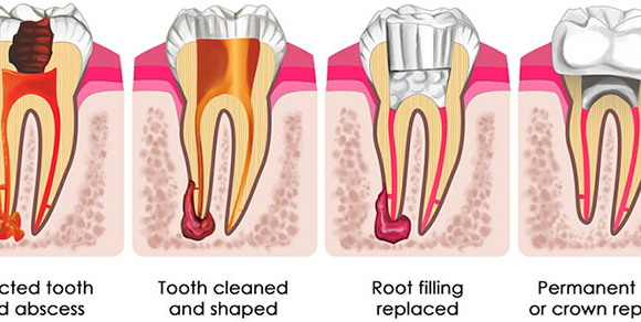 A Cap or no Cap after Root Canal Treatment