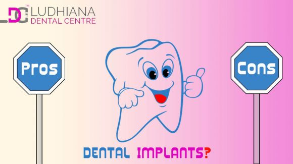What Are The Pros And Cons Of Dental Implants?