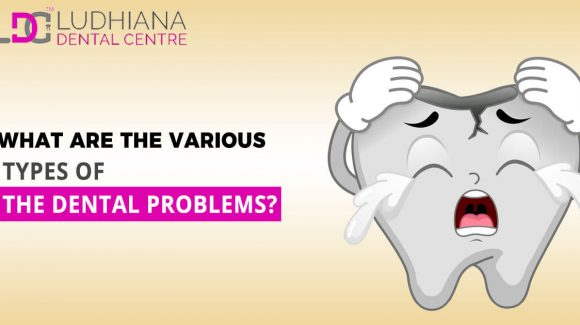 What Are The Various Types Of The Dental Problems?