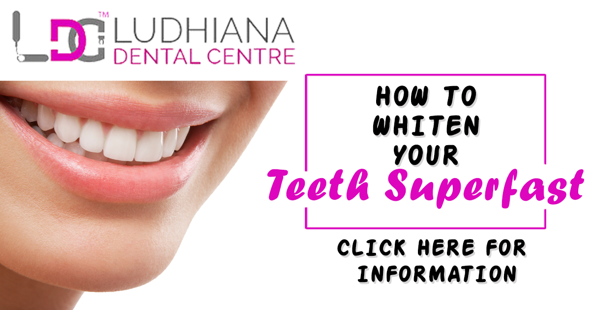 Different Procedures For The Teeth Whitening Treatment
