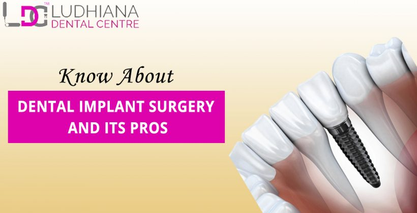Dental Implant Surgery And Its Pros