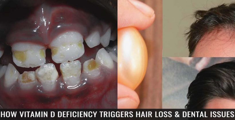 How Vitamin D Deficiency Triggers Hair Loss & Dental Issues