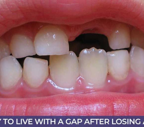Is it Okay to Live With a Gap After Losing a Tooth?