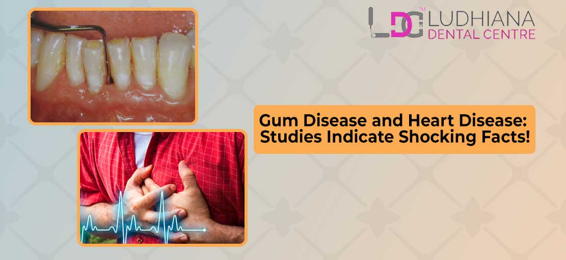 Gum Disease and Heart Disease: Studies Indicate Shocking Facts!
