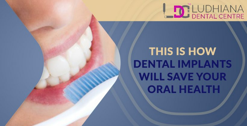This is How Dental Implants Will Save Your Oral Health