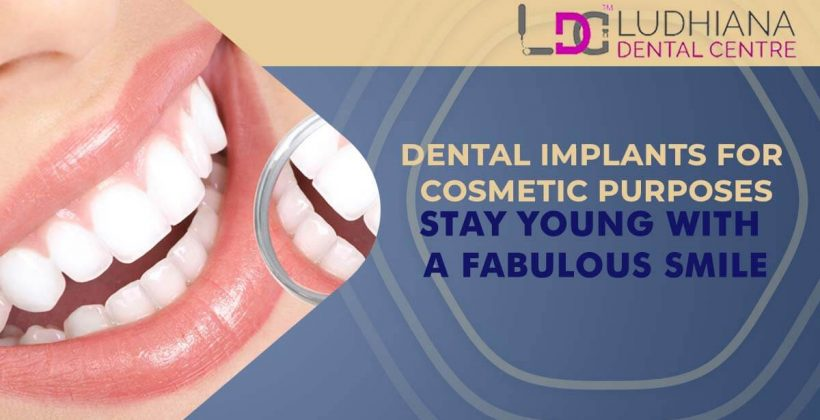 Dental Implants For Cosmetic Purposes- Stay Young With a Fabulous Smile