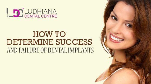 Best Dental Clinic in Doraha | Affordable Dental Implants Treatment