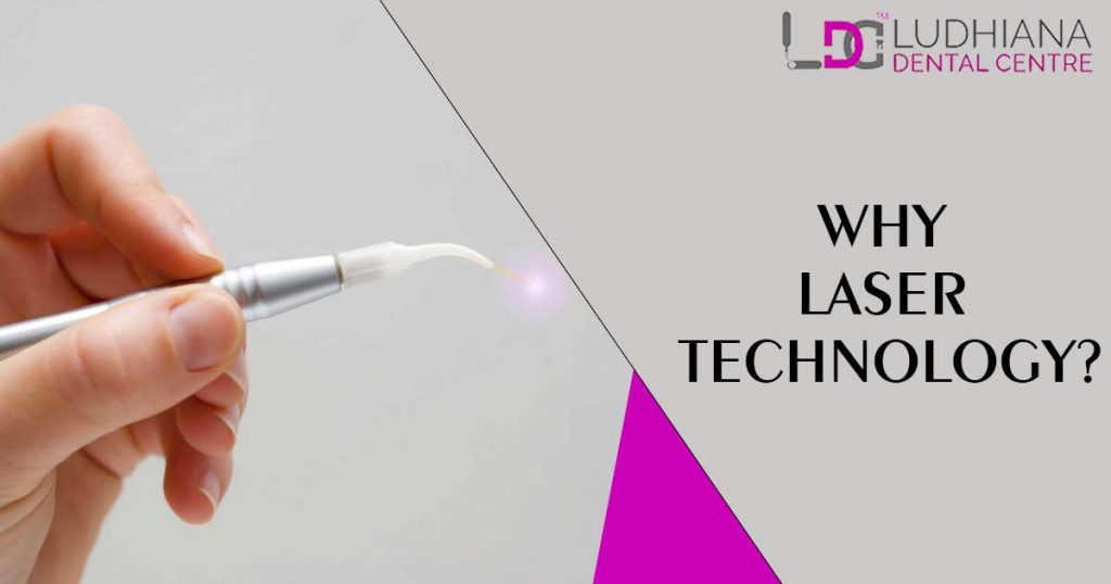 Why laser technology?