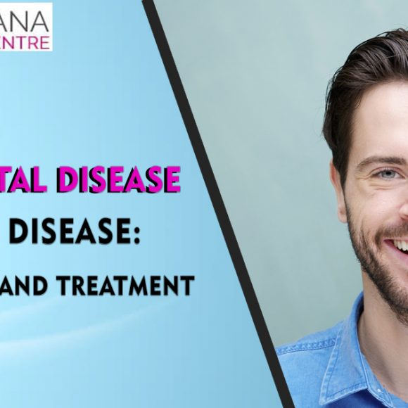 Periodontal Disease or Gum Disease: Types, Signs, and Treatment