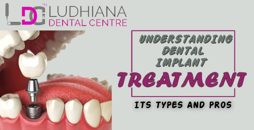 Dental Implant Treatment -Its Types And Its Ultimate Pros