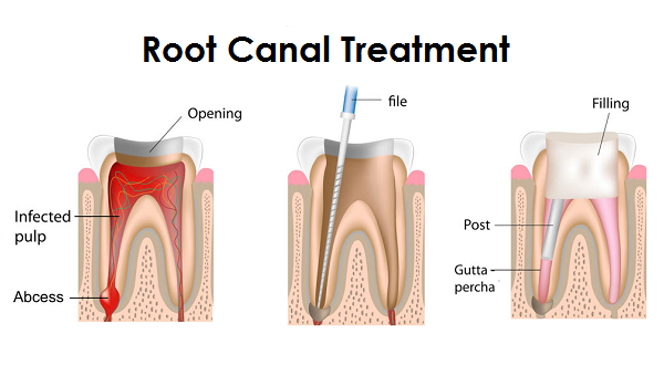 Procedure of Root Canal Treatment