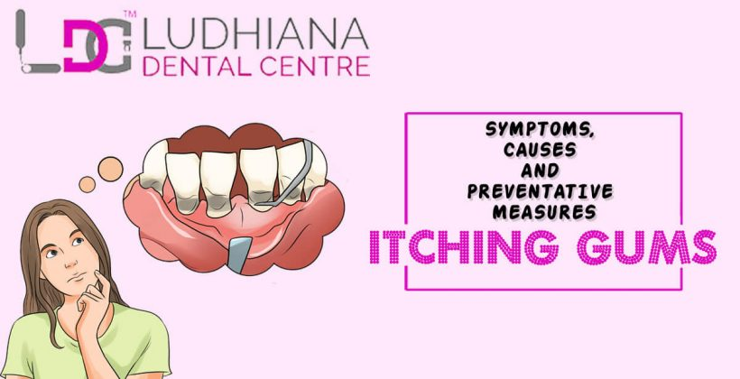 ITCHING GUMS-SYMPTOMS, CAUSES AND PREVENTATIVE MEASURES