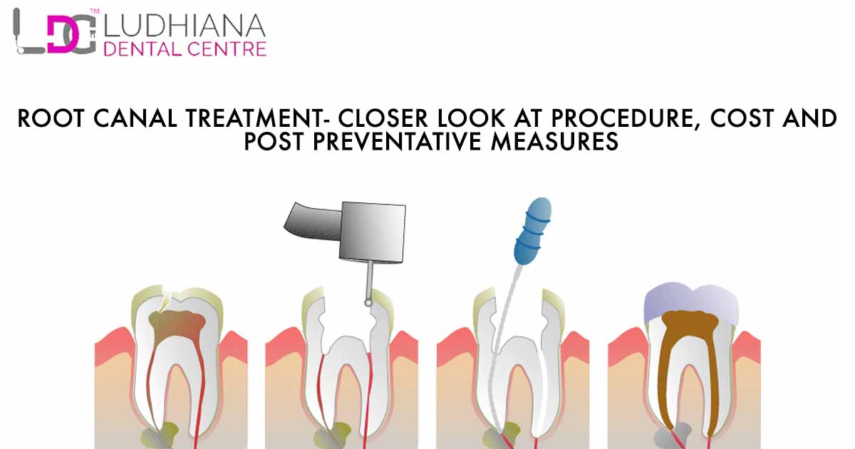 Root Canal Treatment – Closer Look at procedure, cost and post preventative measures