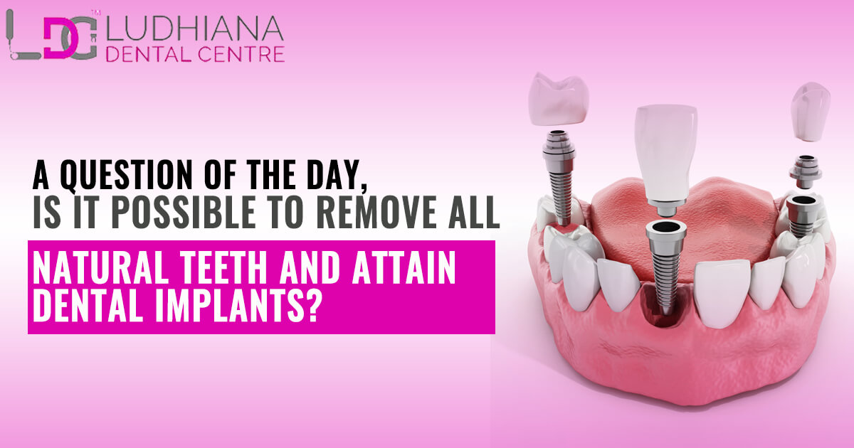 A question of the Day, Is it possible to remove all natural teeth and attain Dental Implants?