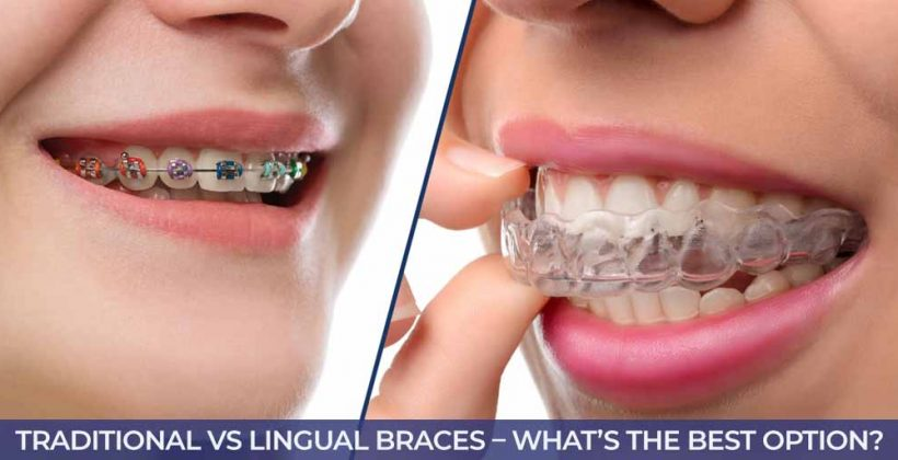 Traditional VS Lingual Braces – What's the Best Option?