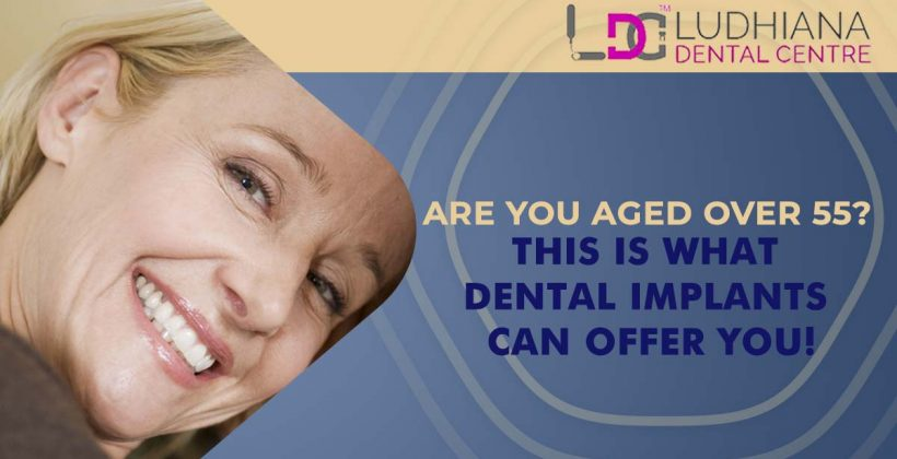 Are You Aged Over 55? This is What Dental Implants Can Offer You!