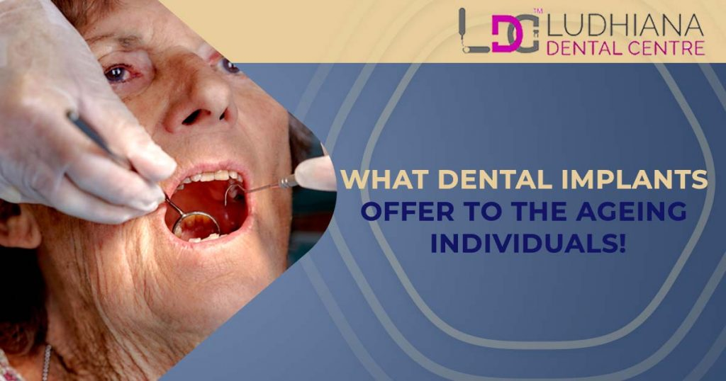 What Dental Implants Offer To The Ageing Individuals!