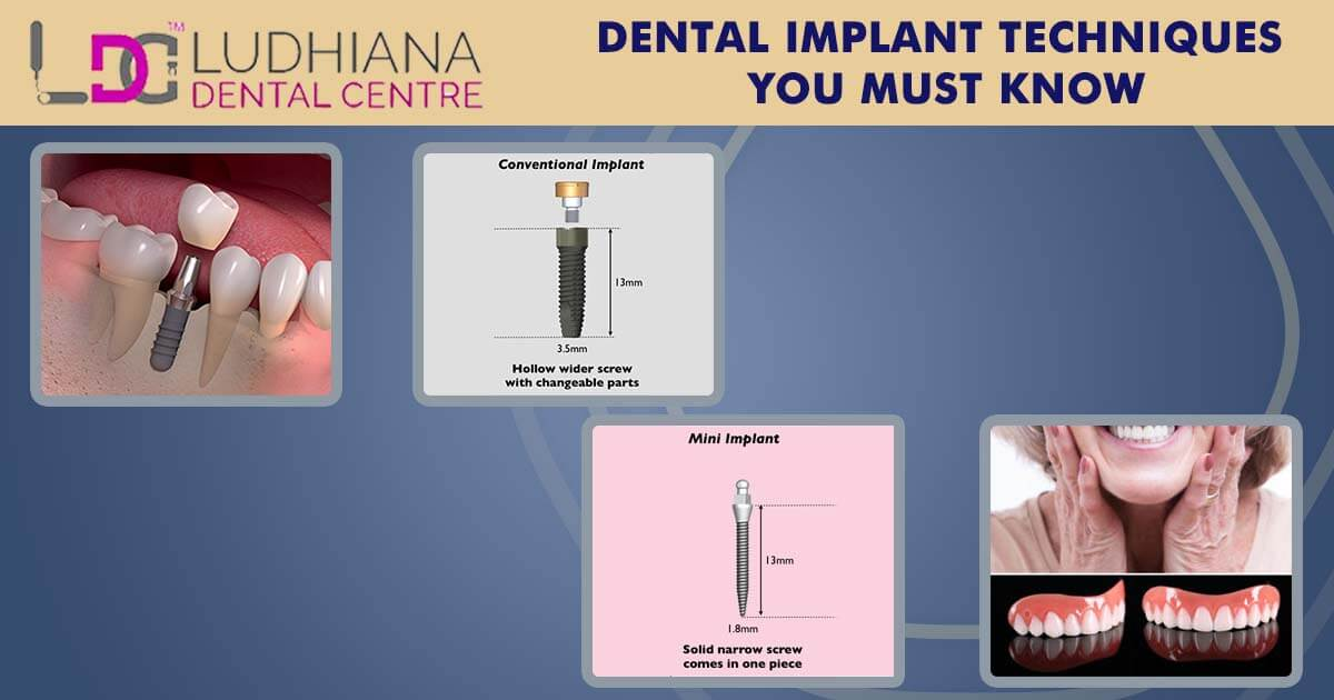 Dental Implant Techniques You Must Know