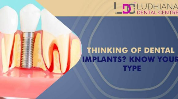 Thinking of Dental Implants? Know Your Type