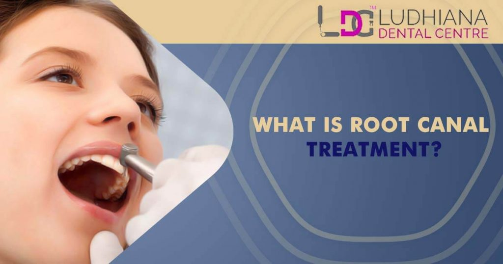 What is root canals treatment?