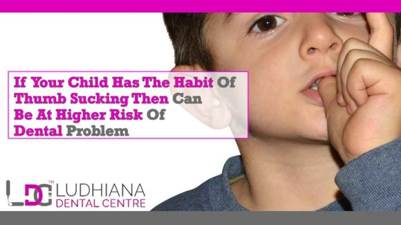 If your Child has the Habit of Thumb Sucking Then Can be at Higher Risk of Dental Problem