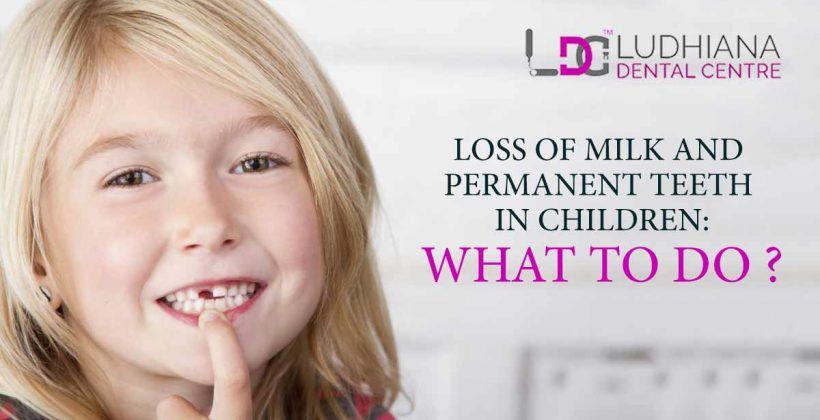 Loss Of Milk And Permanent Teeth In Children : What To Do?