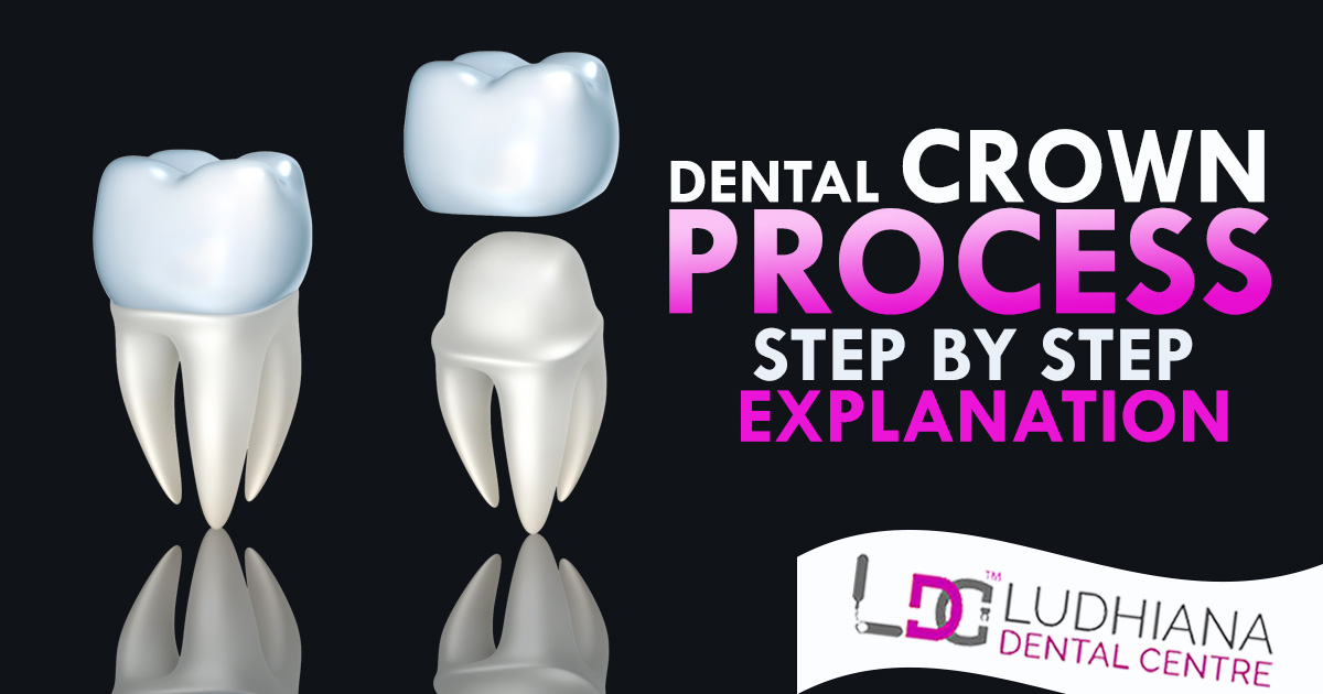Dental Crown Process – Step by Step Explanation