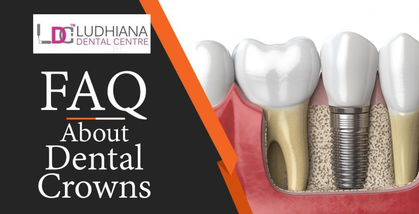 Frequently Asked Questions About Dental Crowns