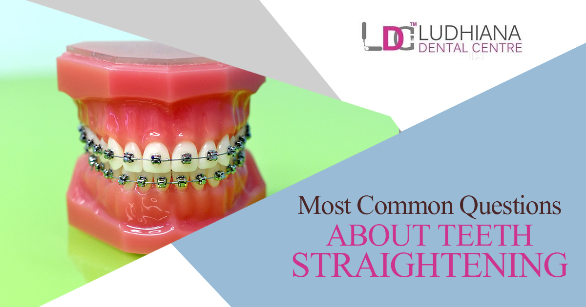 Most Common Questions About Teeth Straightening