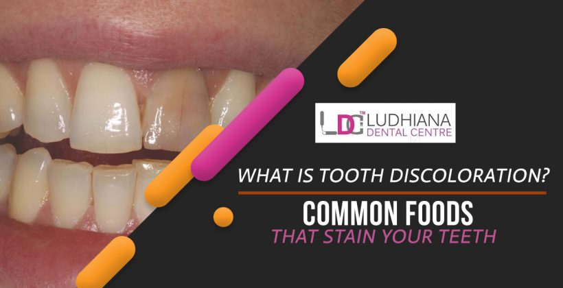 What Is Tooth Discoloration? Common Foods That Stain Your Teeth