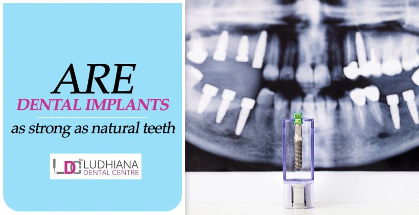 Are Dental Implants As Strong As Natural Teeth