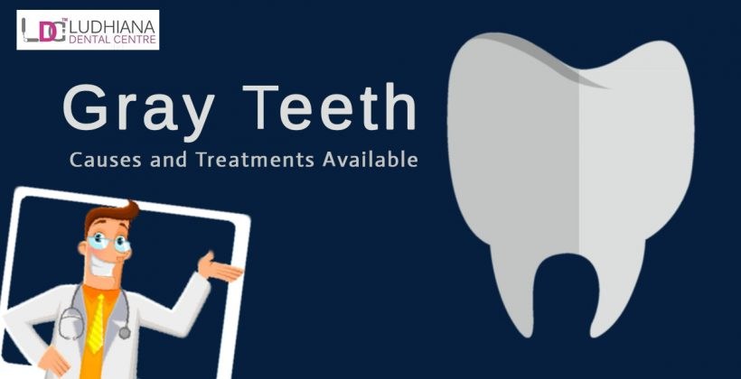 Gray Teeth: Causes and Treatments Available