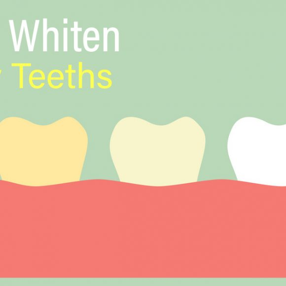 Tips to whiten Yellow Teeth