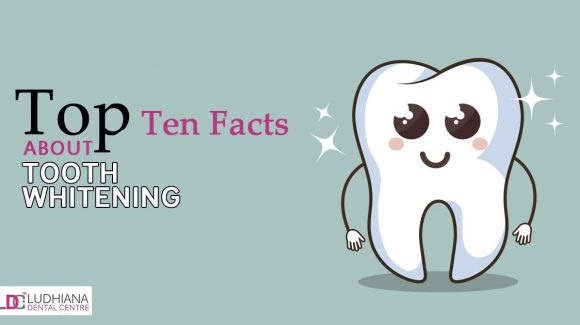 Top Ten Facts about Tooth Whitening
