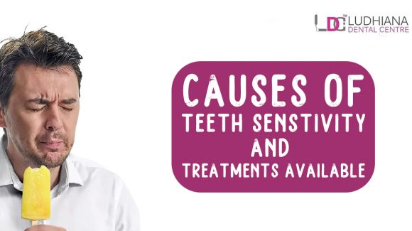 Causes Of Teeth Sensitivity And Treatments Available