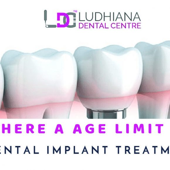 Is There A Age Limit For Dental Implant Treatment