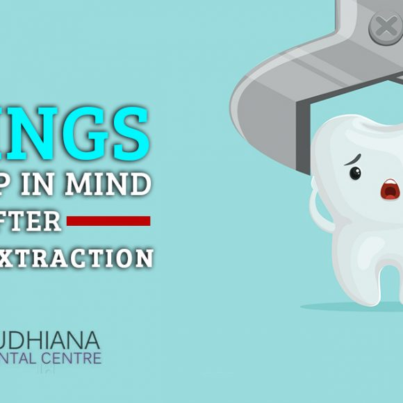 Things to Keep in Mind After Tooth Extraction