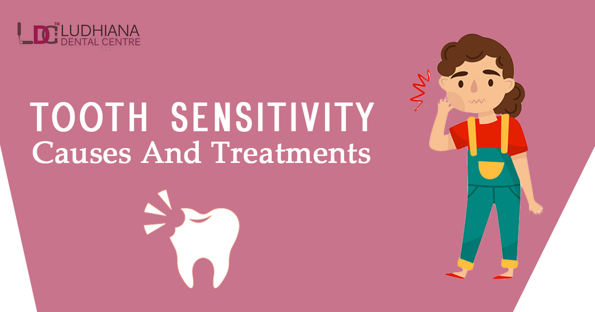 Tooth Sensitivity – Causes and Treatments