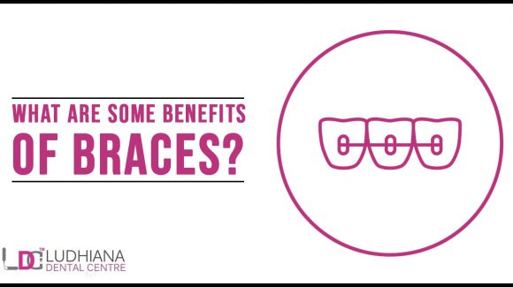 What are some benefits of Braces?