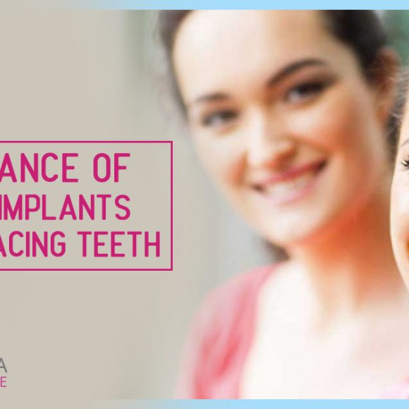 Importance of Dental Implants And Replacing Teeth