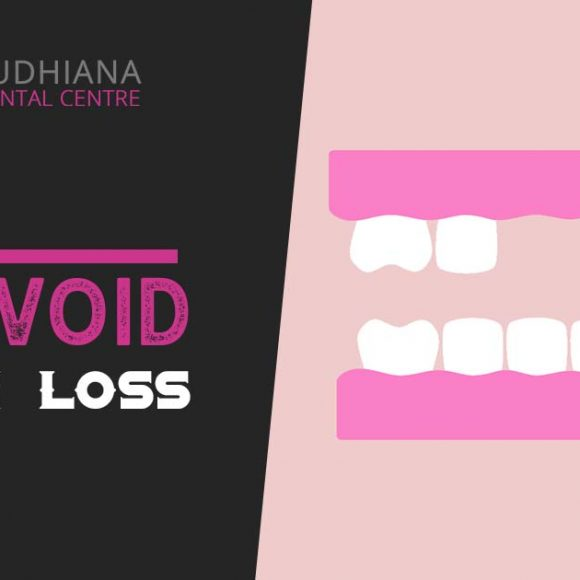 Tips to Avoid Tooth Loss