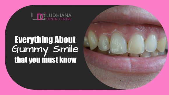 Everything About Gummy Smile that you must know