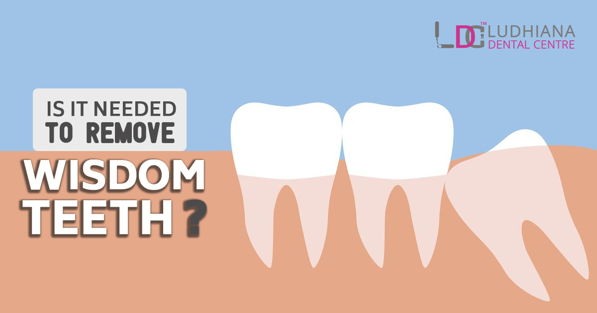 Is it Needed to Remove Wisdom Teeth?