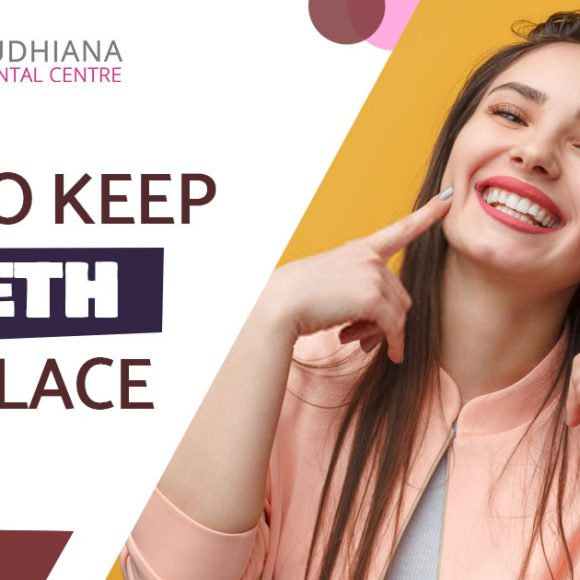 Tips to keep Teeth in Place