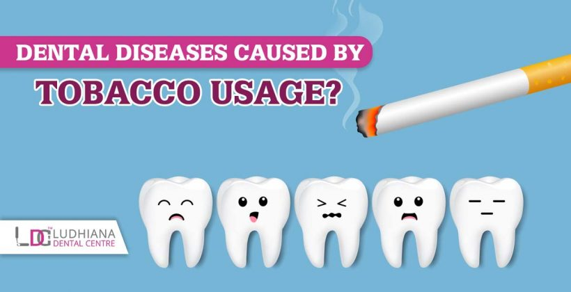 Dental diseases caused by tobacco usage?