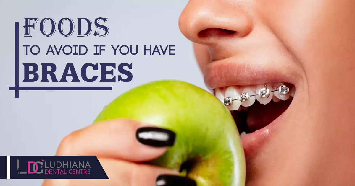 Foods to avoid if you have braces